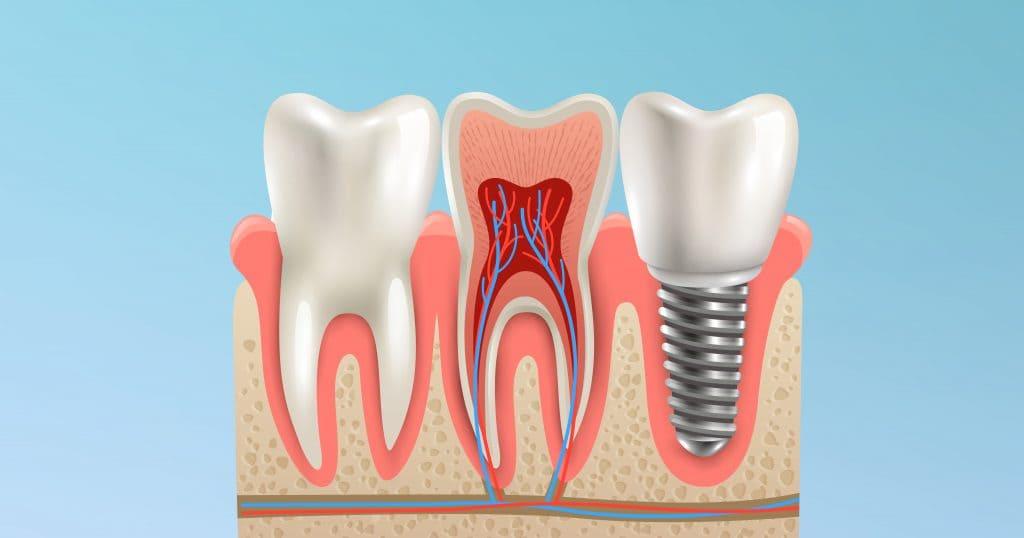 Dente impianto e radice