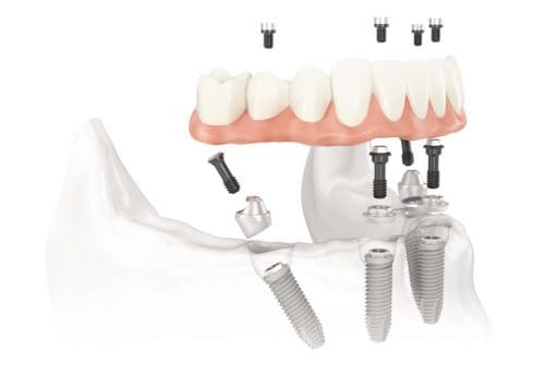 Implantologia Dental All-on-Four Toronto Bridge Verona Nogara Legnago