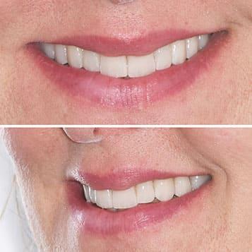 Caso faccette dentali in ceramica