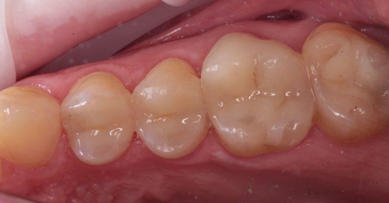 Intarsio Dentale Nogara Legnago