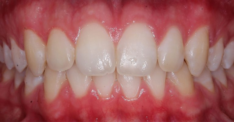 Igiene Orale per la cura dell'infiammazione e recessione delle gengive - dopo